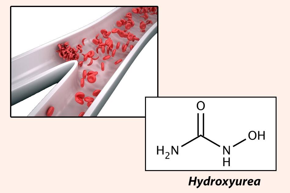 Hydroxyurea được thử nghiệm trên những bệnh nhân bị hồng cầu hình liềm năm 1984