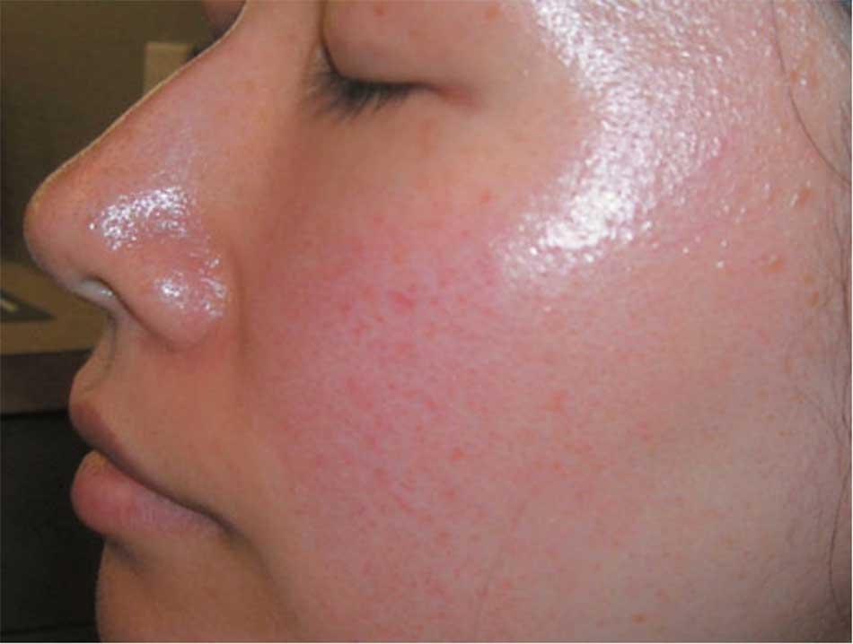 Hình 51. Bệnh trứng cá đỏ ở bệnh nhân Đông Nam Á.