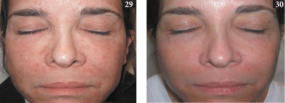Hình 29,30. Bệnh nhân bị mụn trứng cá trên mặt. hình 29, trước khi điều trị. Hình 30, sau ba buổi điều trị bằng liệu pháp quang động dùng axit 5-aminolevulinic và thiết bị điôt phát quang ánh sáng đỏ. Chú ý cải thiện chứng loạn sắc tố do da bị sạm.