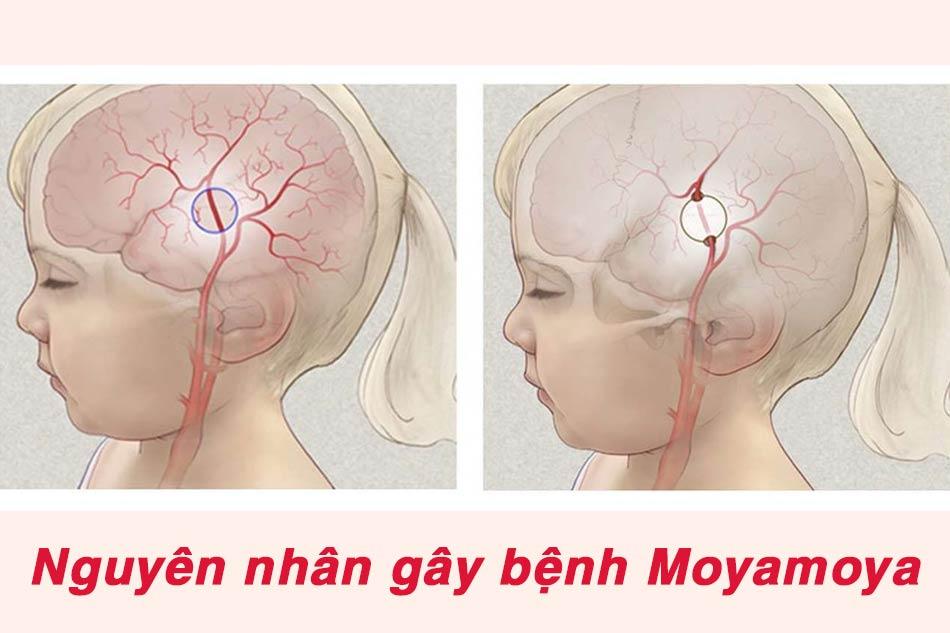 Nguyên nhân gây nên bệnh Moyamoya