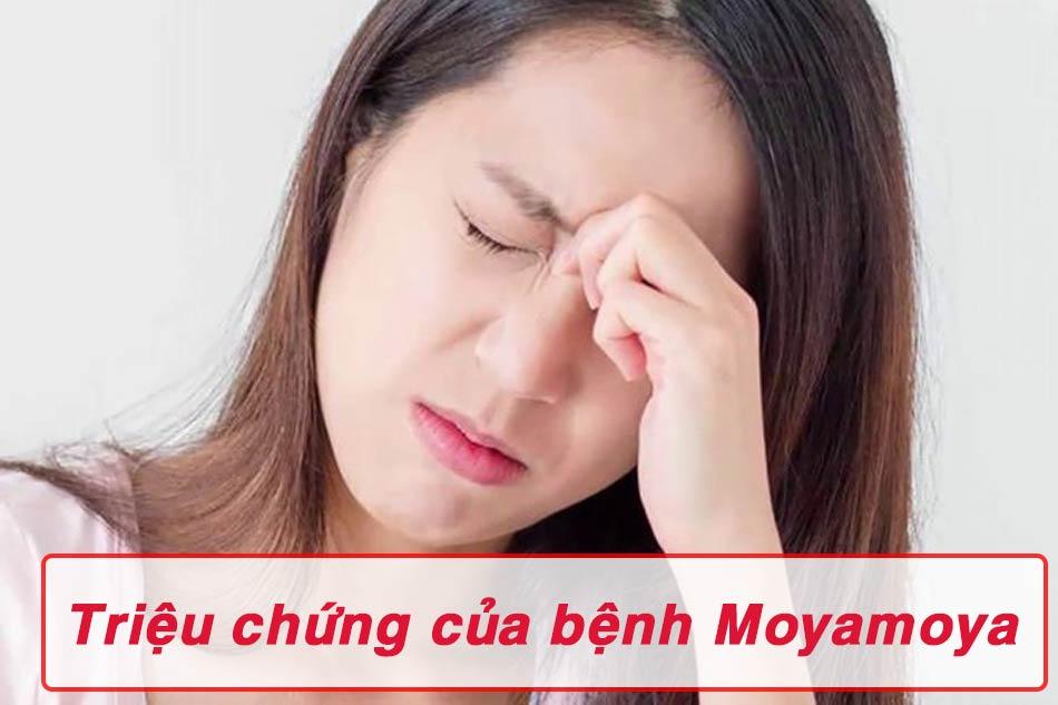 Các triệu chứng của bệnh moyamoya