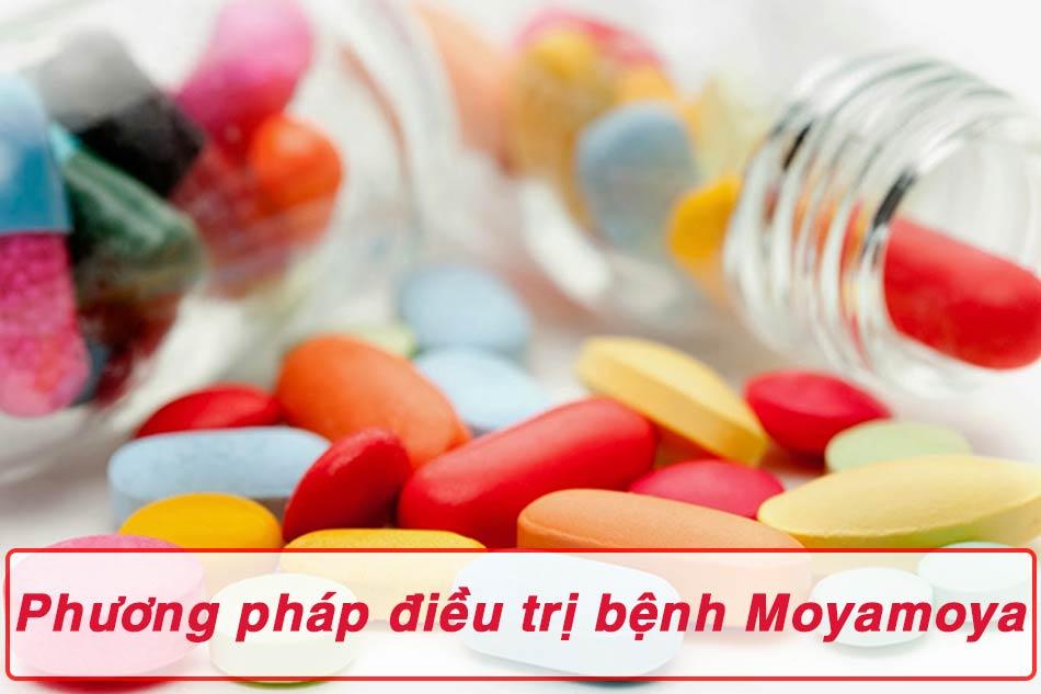 Phương pháp điều trị bệnh Moyamoya