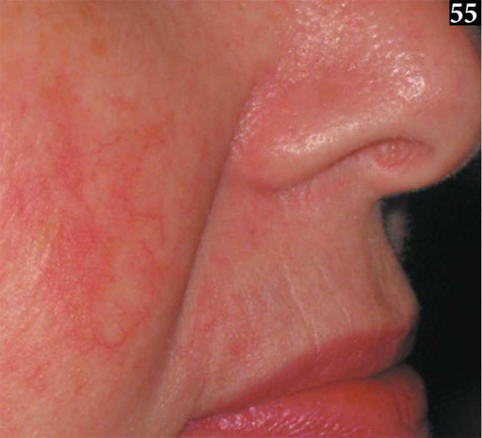 Hình 55. Chứng giãn mao mạch phạm vi rộng của bệnh trứng cá đỏ giãn mạch.