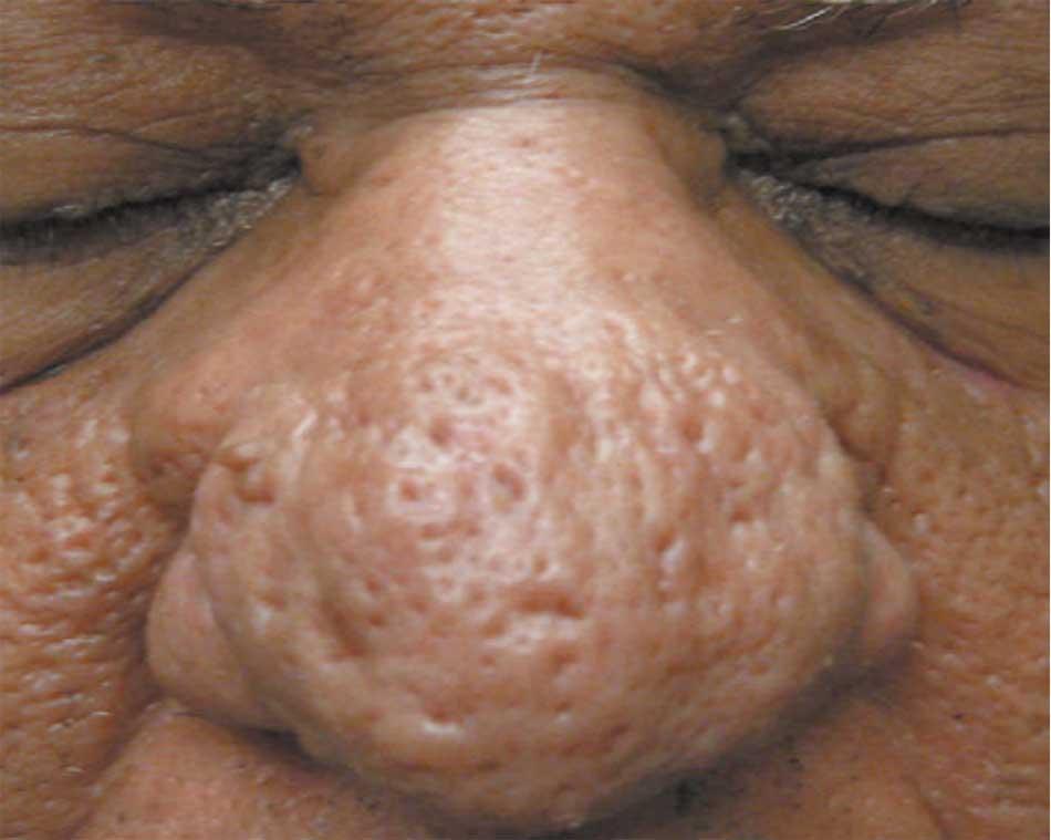 Hình 57. Chứng mũi sư tử ở bệnh nhân  Mỹ gốc Phi.