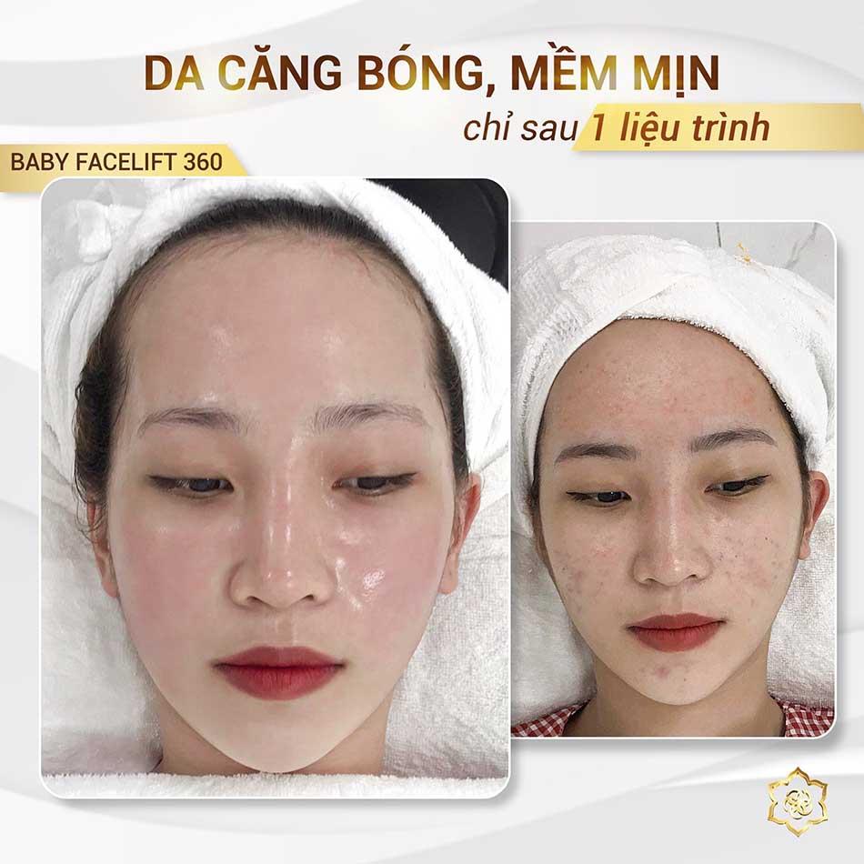 Hình ảnh KH đã sử dụng liệu trình căng bóng trẻ hóa làn da