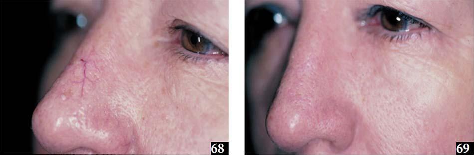 Hình 68,69. Giãn mao mạch. Hình 68, trước khi điều trị. Hình 69, sau điều trị bằng laser Nd:YAG
