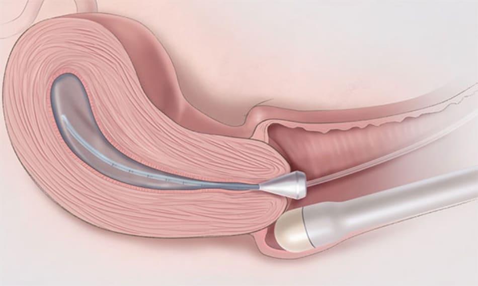 Hình ảnh hở eo tử cung