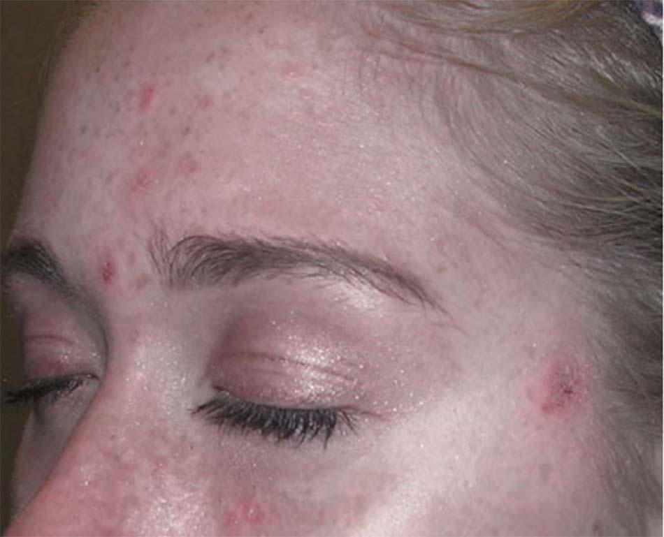 bị tổn thương, dẫn đến kéo dài quá trình lành mụn và thường để lại sẹo.