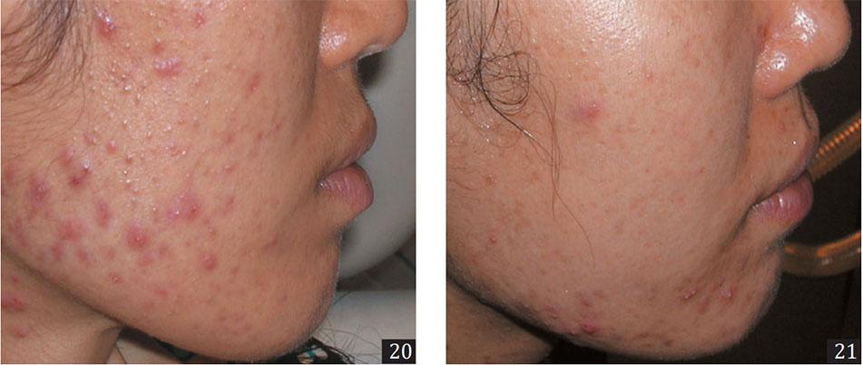 Hình 20,21. Mụn trứng cá viêm ở bệnh nhân Châu Á. Hình 20 trước khi điều trị. Hình 21 sau hai buổi điều trị với laser 1320-nm.