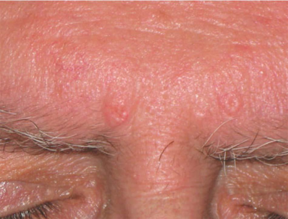 Hình 70. Bệnh nhân có nhiều tổn thương tăng sản bã nhờn do thiệt hại quang hóa phạm vi rộng