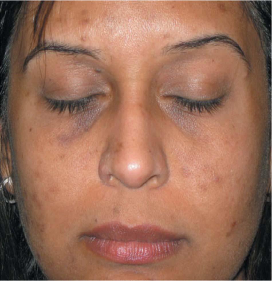 Hình 6. Tăng sắc tố sau viêm là hậu quả phổ biến của mụn trứng cá ở những bệnh nhân có tông màu da tối hơn, chẳng hạn như bệnh nhân Ấn Độ này.