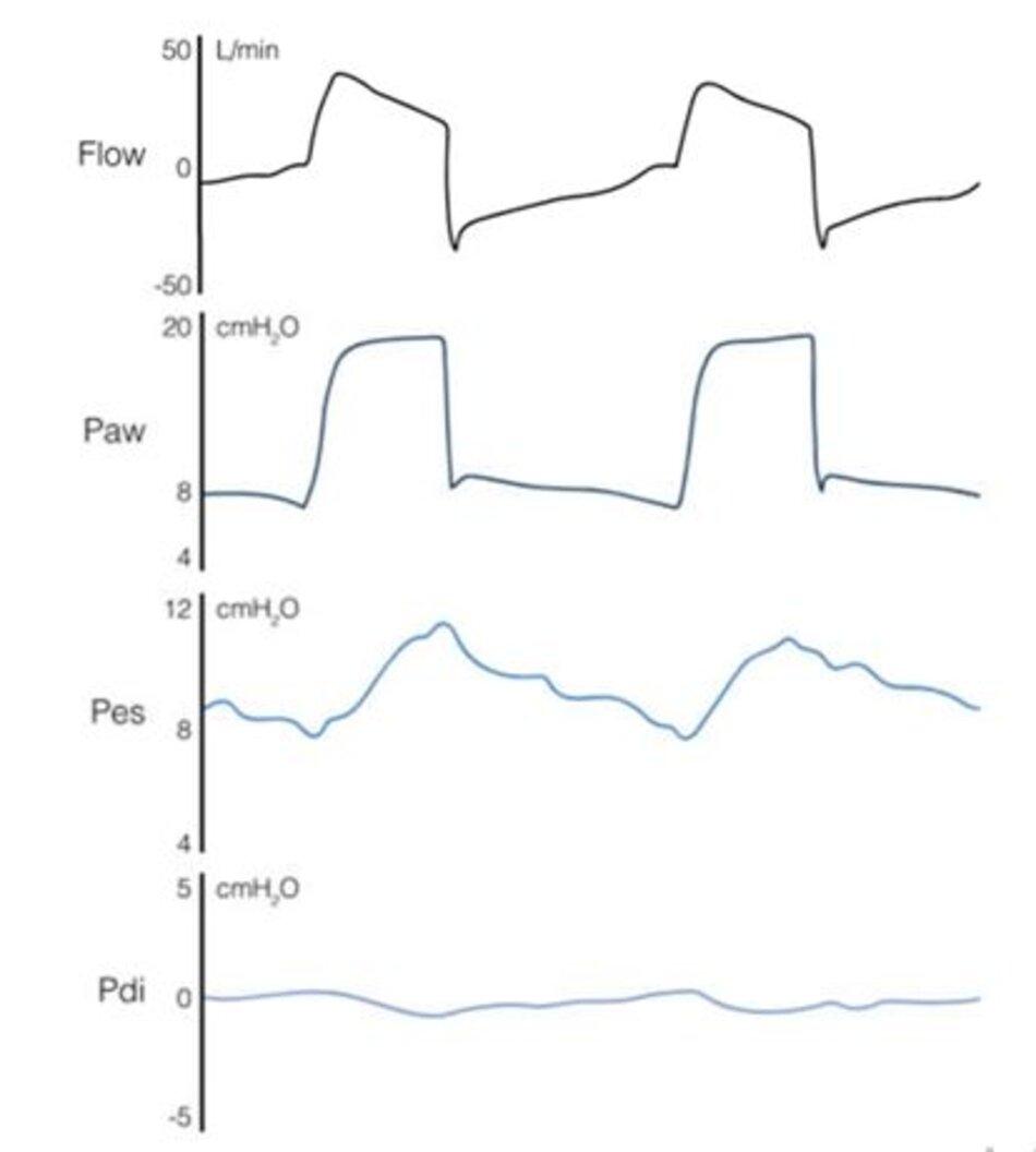 Hình 3 Ví dụ điển hình về hỗ trợ quá mức trong quá trình thông khí hỗ trợ áp lực (PSV). Bệnh nhân được thở máy với áp lực hít vào đặt 10 cmH2O trên áp lực dương cuối thì thở ra 8 cmH2O. Một ống thông mũi dạ dày hai bóng được đặt để đo áp lực thực quản (Pes) và áp lực dạ dày. Áp lực cơ hoành (Pdi) được tính bằng áp lực dạ dày trừ đi Pes. Như có thể thấy trong dạng sóng Pes, bệnh nhân chỉ khởi động máy thở (giảm Pes n
