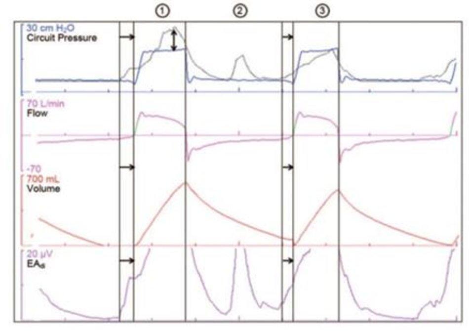 Hình 2. Dạng sóng áp lực, lưu lượng, thể tích và hoạt động điện của cơ hoành (EAdi) từ một bệnh nhân được thông khí hỗ trợ áp lực và đường cong áp lực giả định (màu xám) nếu bệnh nhân đang sử dụng phương pháp hỗ trợ thông khí được điều chỉnh bằng thần kinh (NAVA), với mức NAVAđặt trước không được hiển thị. Nhịp thở 1 và 3 cho thấy sự không đồng bộ về thời gian hít vào: có sự chậm trễ giữa hít vào thần kinh và sự bơm phồng phổi cơ học. Trong nhịp thở 1 cũng có thể có sự không đồng bộ hỗ trợ. Biên độ của nỗ lực thở thần kinh lớn hơn biên độ của bơm phồng phổi cơ học. Nhịp thở 2 cho thấy khả năng kích hoạt không hiệu quả: mặc dù có sự hiện diện của nỗ lực thở thần kinh, không có bơm phồng phổi cơ học. Không đồng bộ kích hoạt không hiệu quả có thể được coi là một dạng cực đoan của sự không đồng bộ về thời gian.