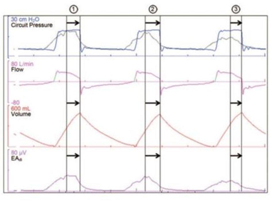 Hình 3. Dạng sóng áp lực, lưu lượng, thể tích và hoạt động điện của cơ hoành (EAdi) từ một bệnh nhân được thông khí hỗ trợ áp lực và đường cong áp lực giả định (màu xám) nếu bệnh nhân đang sử dụng phương pháp hỗtrợthông khí được điều chỉnh bằng thần kinh (NAVA), với mức NAVAđặt trước không được hiển thị. Nhịp thở 3 thể hiện sự không đồng bộ về thời gian thở ra: tiếp tục có bơm phồng phổi cơ học sau khi bắt đầu thở ra thần kinh, gây ra sự chậm trễ giữa thời gian thở ra thần kinh và xẹp phổi xuống cơ học.