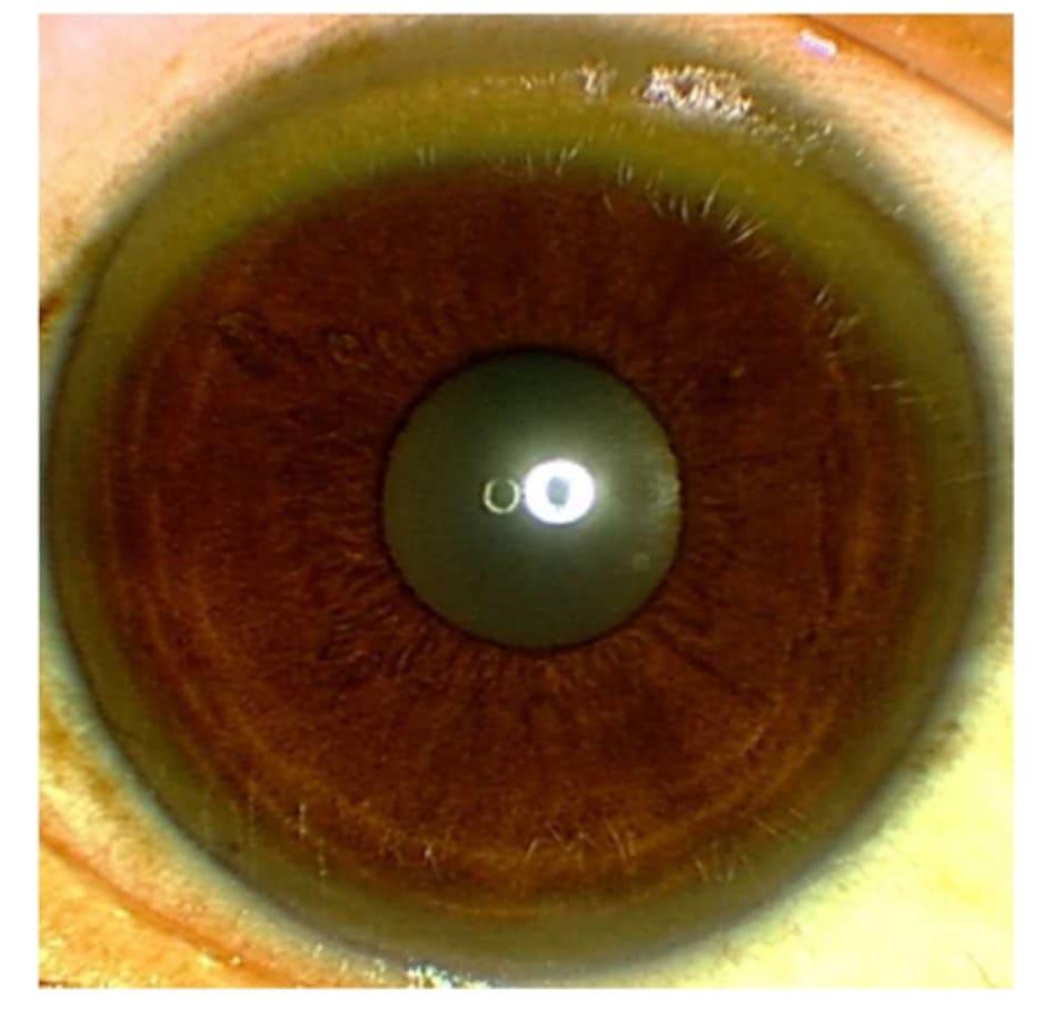 Hình 1: Vòng tròn Kayser-Fleischer trong mắt