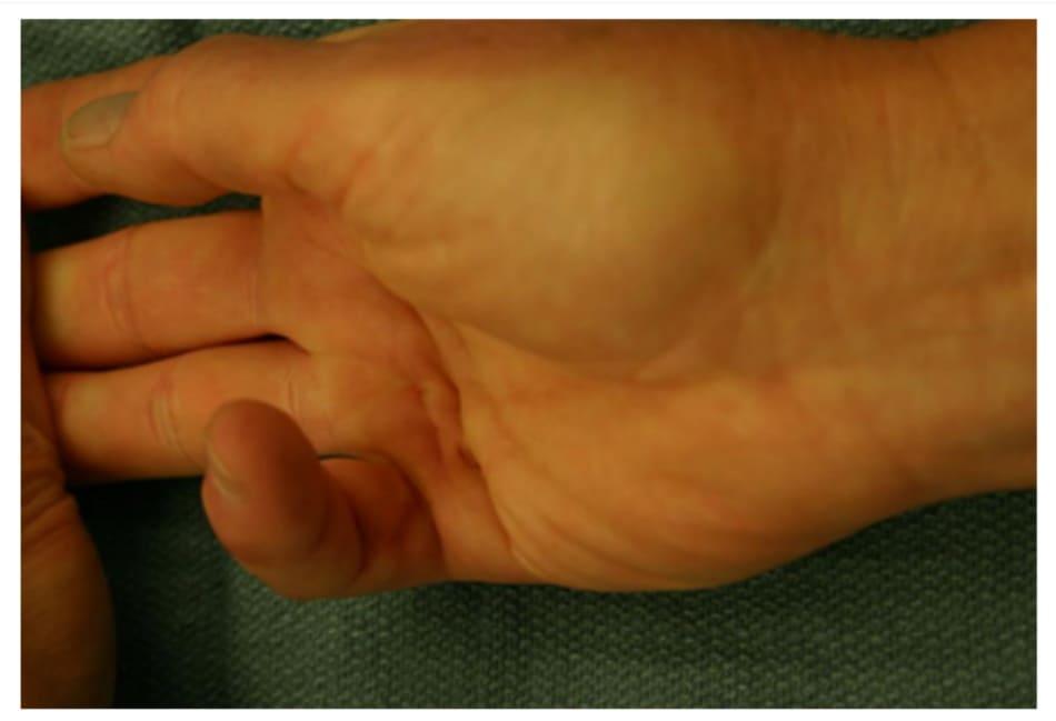 Hình 3: Bệnh co thắt Dupuytren