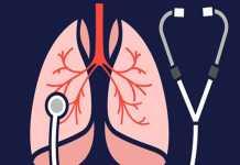 Viêm phổi liên quan đến máy thở ở người lớn: một tổng quan tường thuật