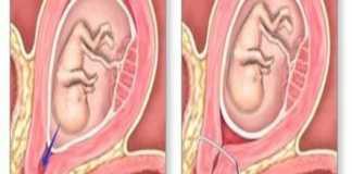 Quản lí hở eo tử cung bằng cách khâu vòng cổ tử cung